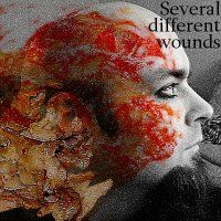 Several different wounds